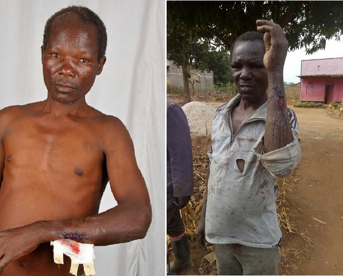 Torture, a new tool being used to evict smallholder farmers off their land in Uganda